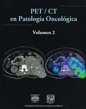 PET/CT en patología oncológica. Vol. 1