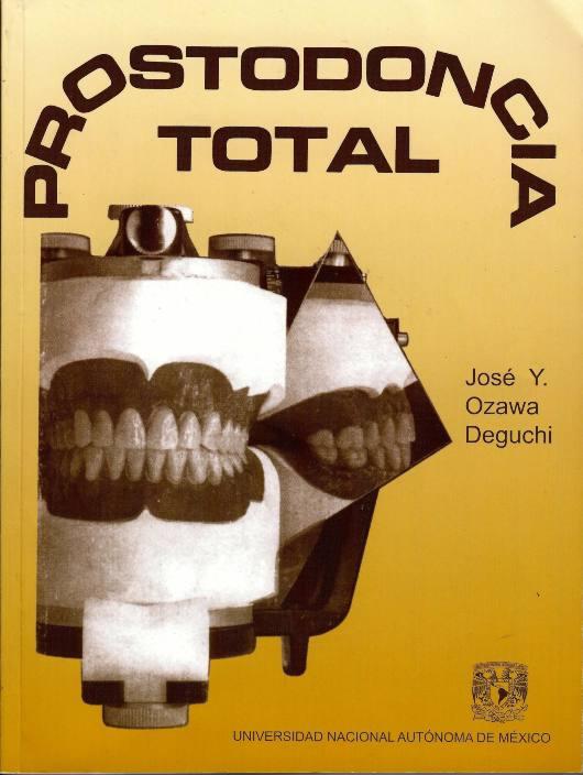 Prostodoncia total